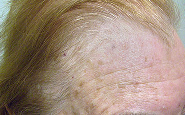 Actinic Keratosis - after treatment