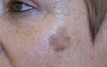 Pigmented spot - before treatment
