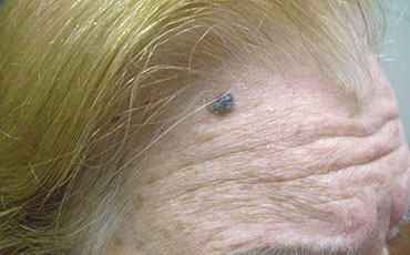 Actinic Keratosis - before treatment