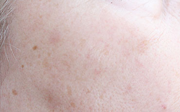 Skin tag - after treatment