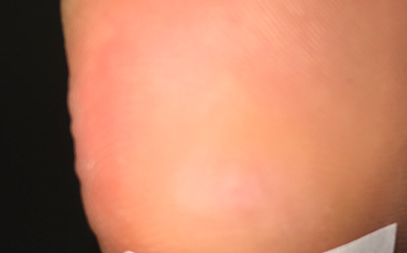 Plantar wart - after treatment