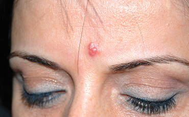 Sebaceous hyperplasia - before treatment