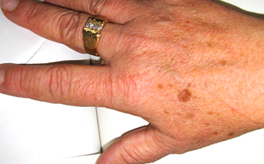 Age spot - before treatment
