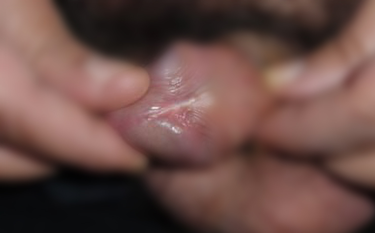 Genital wart - after treatment