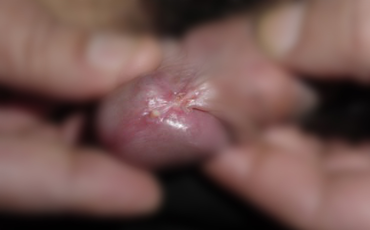 Genital wart - before treatment