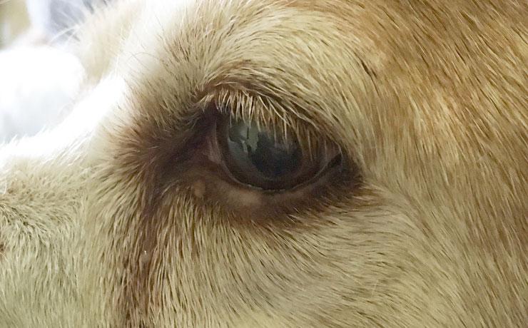 Eyelid Adenoma - after treatment