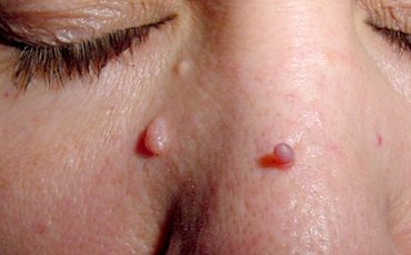 Skin tag - before treatment