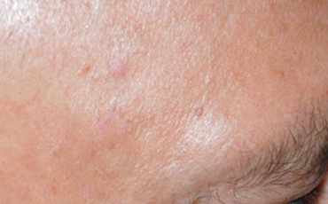 Pigmented spot - after treatment