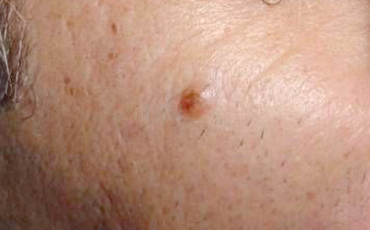 Wart - before treatment