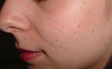 Age spots - after treatment