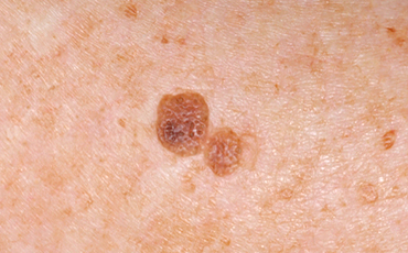 Seborrheic Keratosis - before treatment