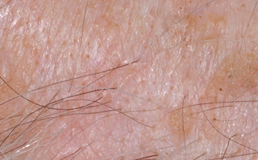 Seborrheic Keratosis - after treatment